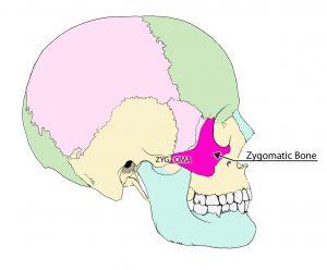 zygoma-bobs-skull-art-2-zyg-zygomatic